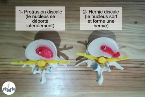 protrusion hernie mortier osteopathe